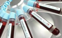 Bradesco Seguros, Coca-Cola Brasil, Coca-Cola FEMSA e Grupo Fleury firmam parceria para realizar testes de diagnóstico da COVID-19 em profissionais da saúde do Estado de São Paulo
